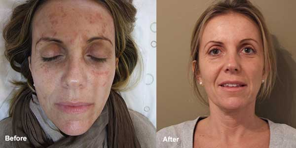 TCA chemical peel before and after photos
