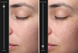 skin analysis demonstrating ageing process