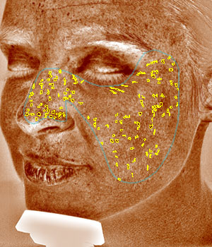Skin analysis for brown spots